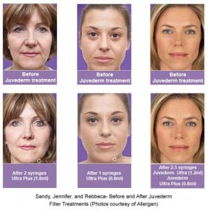 dermal fillers for lines juvederm-pics