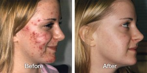 Acne Treatment Before After using TCA Cross