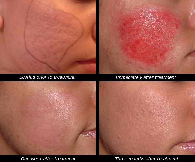 Pimple Mark Removal Natural