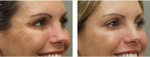 Before and After Botox Crows Feet