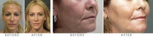 Thread Lift Before & After