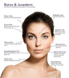 Anti-wrinkle juvederm fillers for 8 point lift