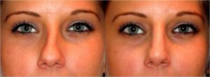 nose augmentation dr anil chiswick