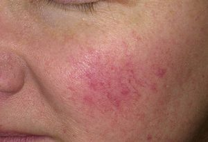 rosacea cheek