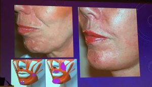before and after of a chin smoothing using botox