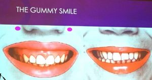 gummy smile before and after with botox