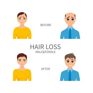 hair loss before and after prp therapy