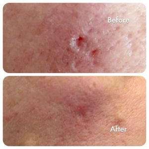 before and after prp treatment for acne scarring dr anil
