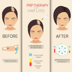 hair loss prp therapy steps